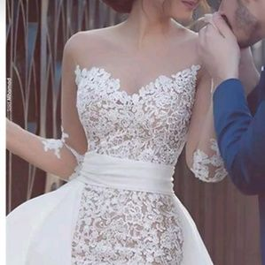 Dresses & Skirts - Breathtaking Lace 2 in 1 Wedding Gown